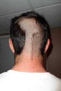 brain surgery stitches