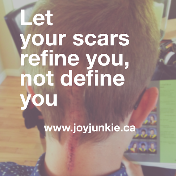 Let your scars refine you, not define you